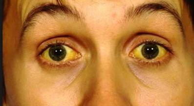 Mendeteksi Penyakit Kuning Dari Kondisi Mata
